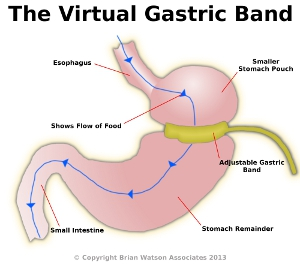 virtual gastric band doncaster and south yorkshire